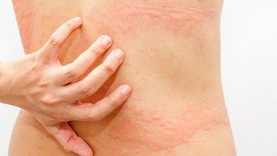 Dermatographia of netelroos? - AllinMam.com